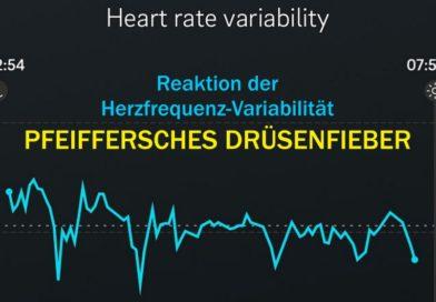 Pfeiffersches Drüsenfieber und die Herzfrequenz-Variabilität